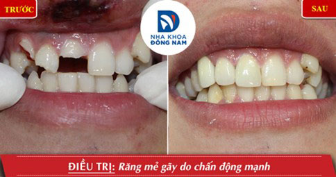 Bọc răng sứ cho răng bị gãy mẽ lớn