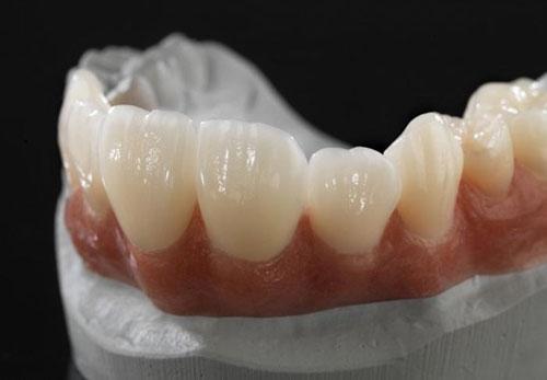 Bọc răng sứ có hết móm không?