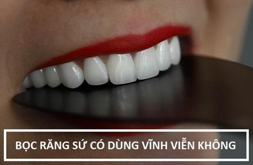 Bọc răng sứ có sử dụng vĩnh viễn?