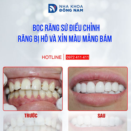 Bọc răng sứ điều chỉnh răng hô nhẹ