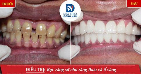Bọc răng sứ giúp khắc phục tình trạng răng cửa to và thưa hiệu quả