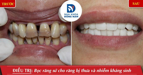 Bọc răng sứ khắc phục răng thưa