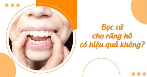 Bọc sứ cho răng hô có hiệu quả không?