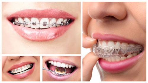 Các loại niềng răng phổ biến hiện nay