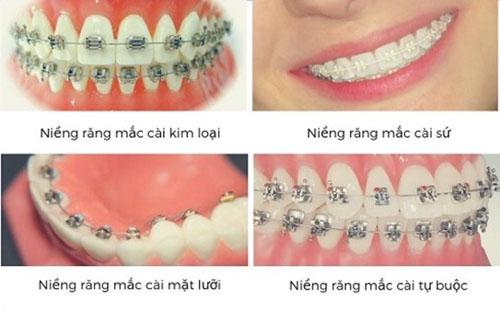 Các phương pháp niềng răng mắc cài