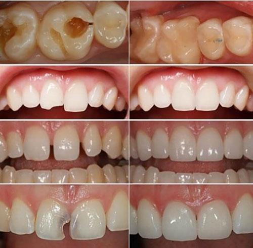 Các trường hợp trám răng cần thực hiện sớm