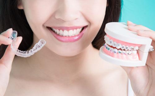 Cách niềng răng hô hiệu quả