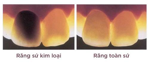 Cân nhắc chọn lựa loại răng sứ tốt để thực hiện