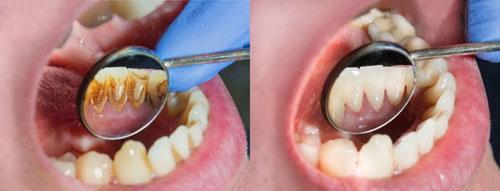 Cạo vôi răng định kỳ 6 tháng/ lần