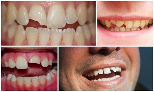 Chấn thương, va đập mạnh làm răng cửa sứt mẻ và dễ bị lung lay