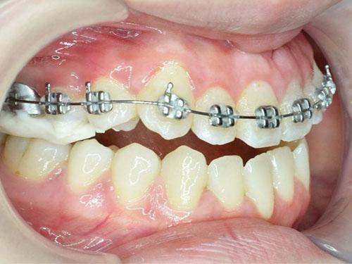 Chỉ định niềng răng 1 hàm cũng tùy từng trường hợp răng cụ thể
