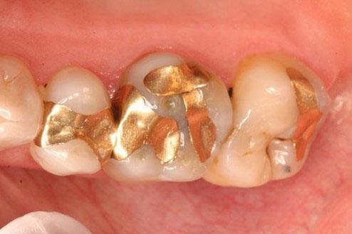 Chi phí đúc vàng trám răng khá cao