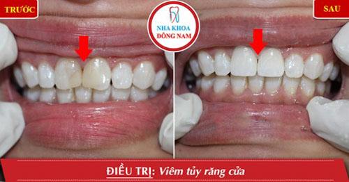 Chi phí lấy tủy răng ở trường hợp đã chữa tủy