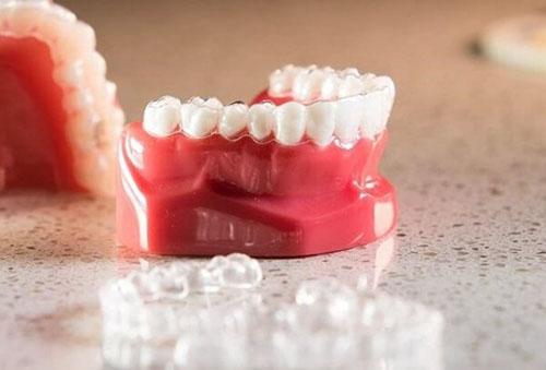 Chi phí niềng răng 3D Clear phụ thuộc vào nhiều yếu tố