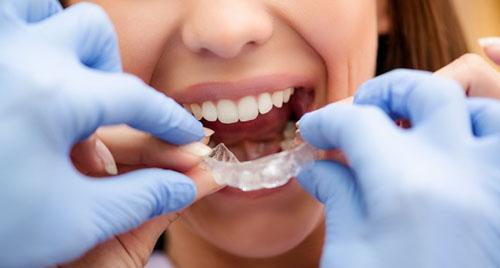 Chi phí niềng răng không mắc cài phụ thuộc nhiều yếu tố
