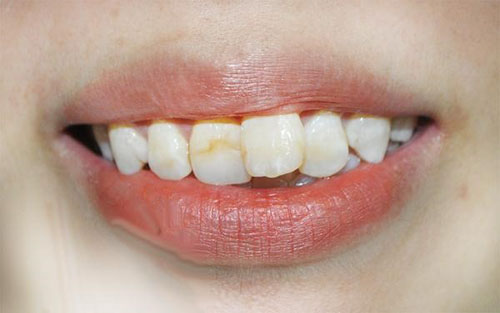 Chi phí niềng răng phụ thuộc vào tình trạng lệch lạc của răng