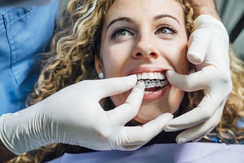 Chi phí niềng răng trong suốt sẽ phụ thuộc nhiều yếu tố