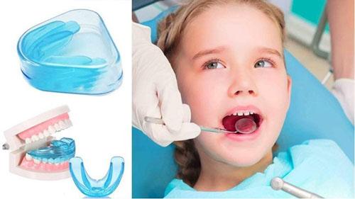 Cho trẻ đeo hàm trainer để hướng dẫn răng mọc đúng