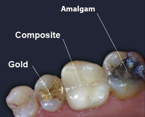 Chọn lựa vật liệu trám răng phù hợp