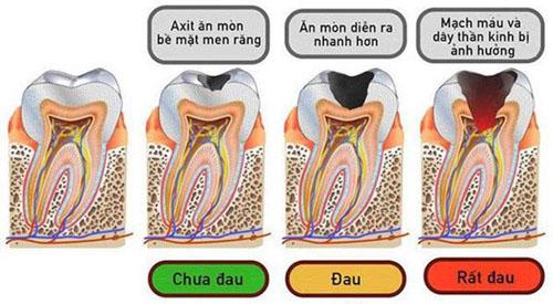 Diễn biến sâu răng qua 4 giai đoạn