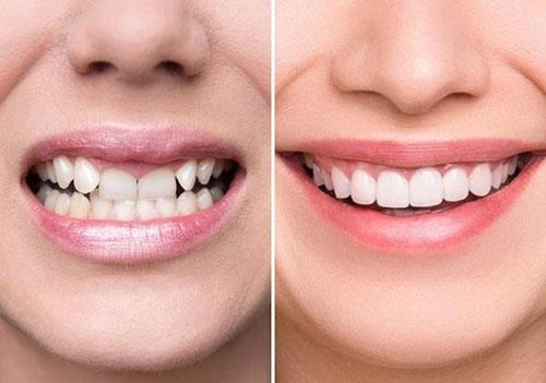 Điều chỉnh răng hô với răng sứ toàn sứ cao cấp