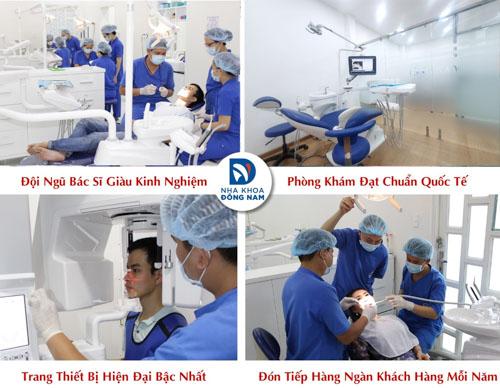 Điều trị răng cửa lung lay hiệu quả tại Nha Khoa Đông Nam