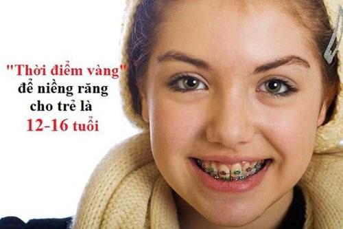 Theo khuyến cáo của chuyên gia độ tuổi niềng răng lý tưởng là từ 12-16