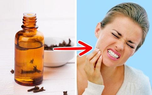 Dùng tinh dầu đinh hương để chữa đau răng tại nhà