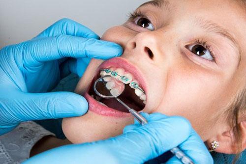 Ê răng khi niềng răng có thể do thực hiện sai kỹ thuật