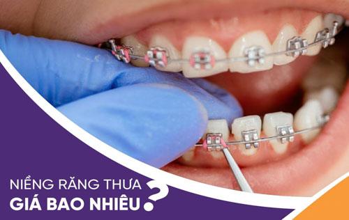Giá niềng răng thưa là bao nhiêu?