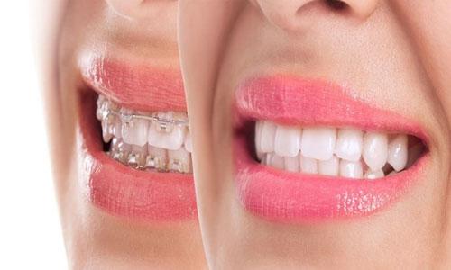 Hiệu quả nắn chỉnh răng của mắc cài sứ khá tốt