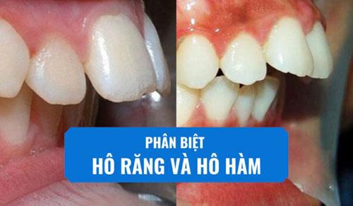 Hô hàm và hô răng có cách nhận biết như thế nào?