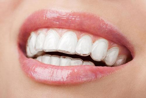 Khay niềng ôm sát vào răng không gây cảm giác cộm cấn, khó chịu