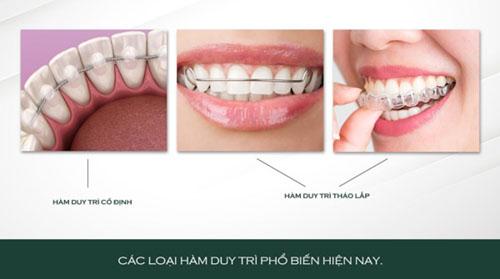 Không đeo hàm duy trì có thể làm răng bị hô sau khi tháo niềng