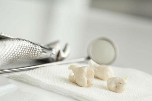 Khuyến cáo nhổ bỏ răng khôn