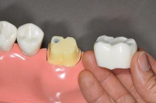 Khuyến khích bọc răng sứ sau khi chữa tủy răng