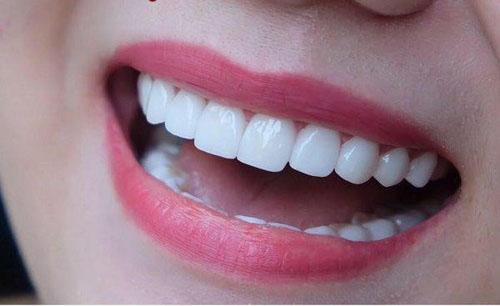 Kiểm tra lại khớp cắn các răng sứ sau khi làm lại
