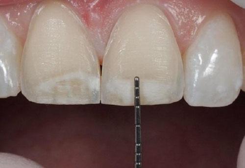 Kỳ thuật mài răng không đảm bảo
