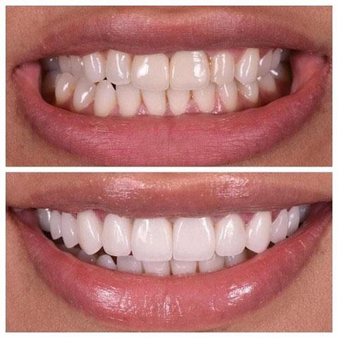 Làm lại răng sứ mới
