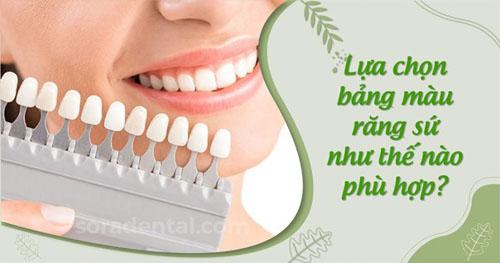 Lựa chọn bảng màu răng sứ như thế nào phù hợp?
