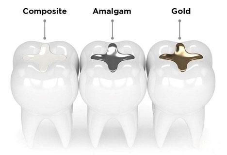 Lựa chọn vật liệu trám răng phù hợp với thai phụ