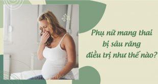 Phụ nữ mang thai bị sâu răng điều trị như thế nào?