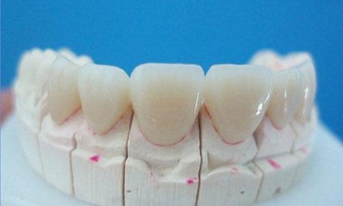 Màu sắc răng sứ đồng màu răng thật
