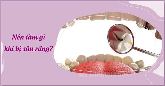 Nên làm gì khi bị sâu răng?