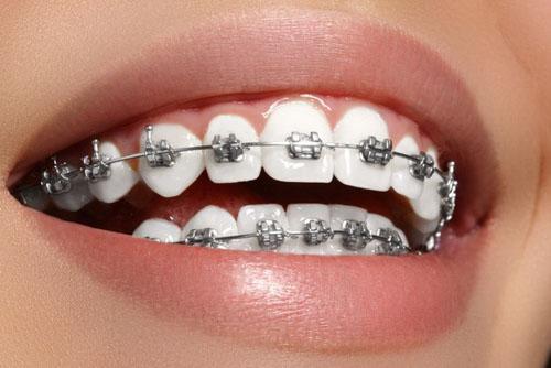 Nên niềng răng ở 2 hàm để đạt kết quả cao