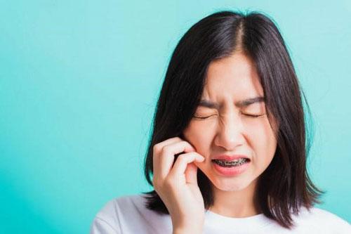 Nền răng yếu có thể gây cảm giác đau ê khi niềng răng
