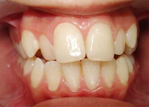 Người có răng cửa to và hô khá vất vả trong cuộc sống