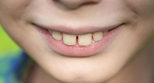 Người có răng cửa to và thưa thưa được xem là có tính tiêu xài hoang phí