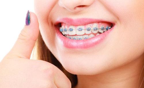 Người trưởng thành phải niềng răng toàn hàm mới đạt kết quả cao