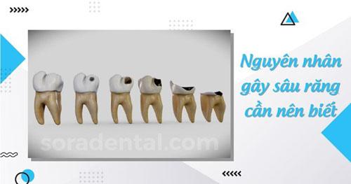 Nguyên nhân gây sâu răng cần nên biết